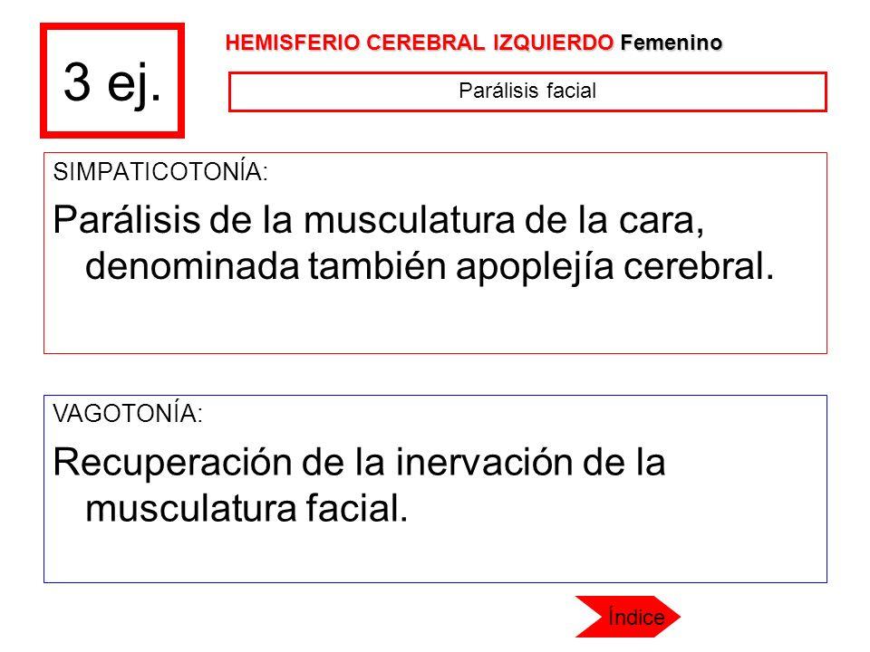 3 ej. SIMPATICOTONÍA: Parálisis de la musculatura de la cara, denominada también apoplejía cerebral. VAGOTONÍA: Recuperación de la inervación de la mu