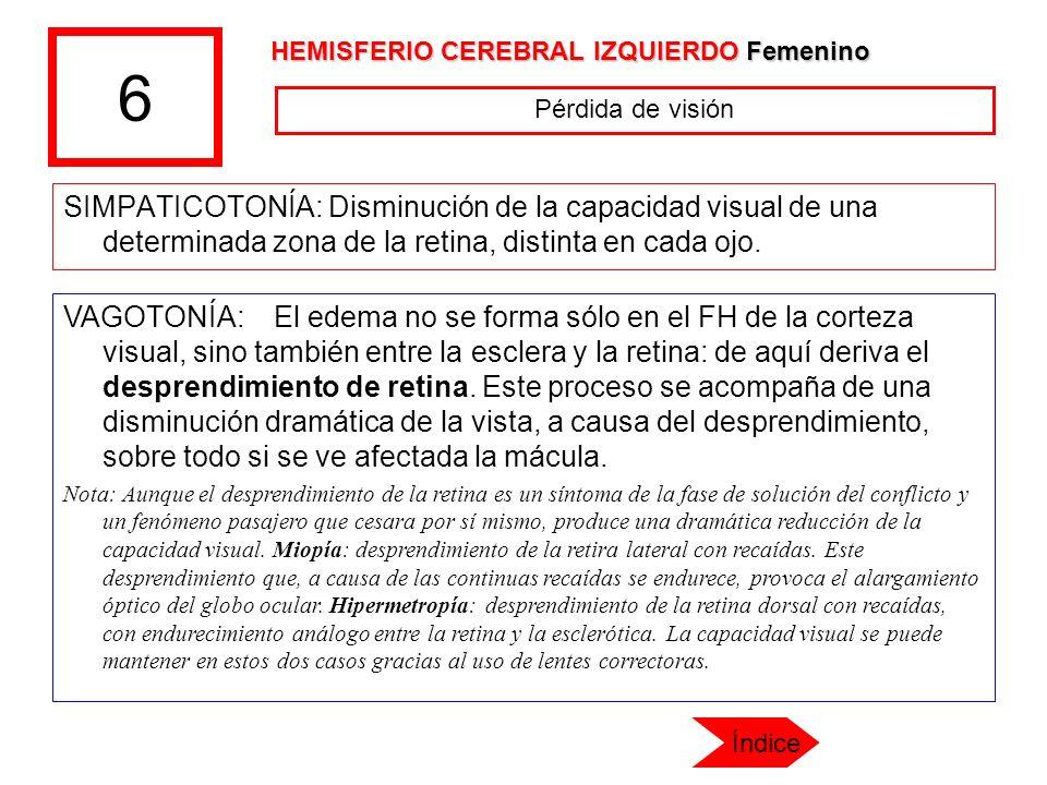 6 SIMPATICOTONÍA: Disminución de la capacidad visual de una determinada zona de la retina, distinta en cada ojo. VAGOTONÍA: El edema no se forma sólo