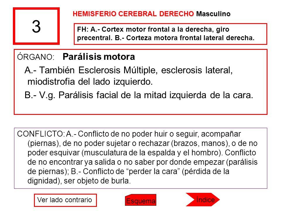 3 ÓRGANO: Parálisis motora A.- También Esclerosis Múltiple, esclerosis lateral, miodistrofia del lado izquierdo. B.- V.g. Parálisis facial de la mitad