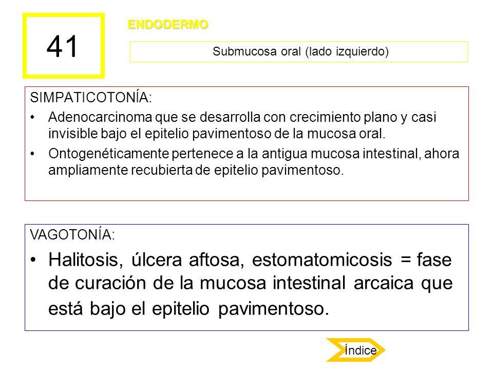 41 SIMPATICOTONÍA: Adenocarcinoma que se desarrolla con crecimiento plano y casi invisible bajo el epitelio pavimentoso de la mucosa oral. Ontogenétic