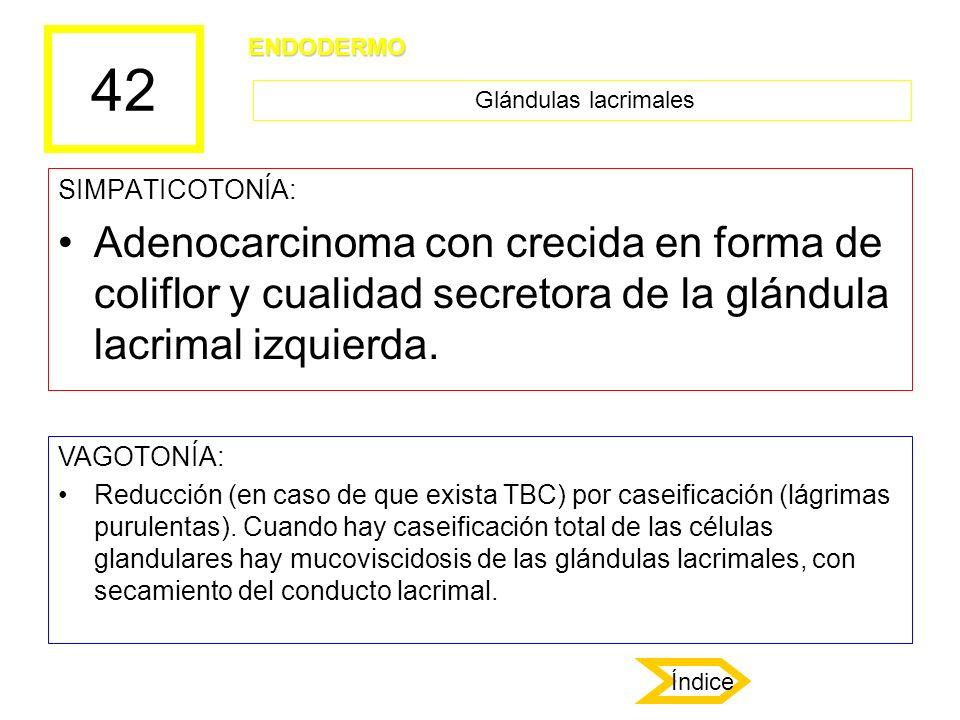 42 SIMPATICOTONÍA: Adenocarcinoma con crecida en forma de coliflor y cualidad secretora de la glándula lacrimal izquierda. VAGOTONÍA: Reducción (en ca