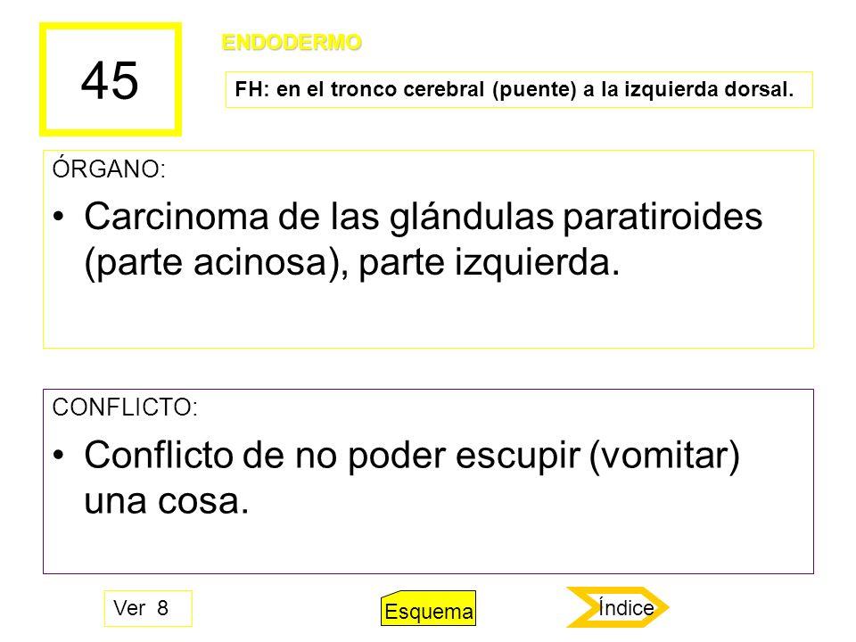 45 ÓRGANO: Carcinoma de las glándulas paratiroides (parte acinosa), parte izquierda. CONFLICTO: Conflicto de no poder escupir (vomitar) una cosa. ENDO