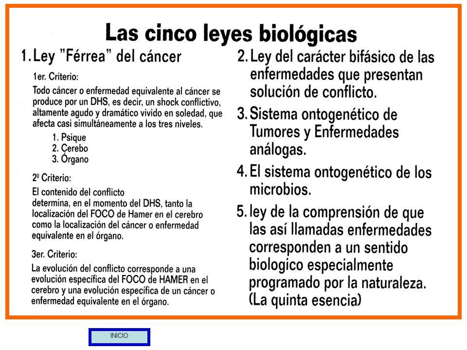 44 SIMPATICOTONÍA: El adenocarcinoma provoca la obstrucción de las Trompas de Eustaquio.