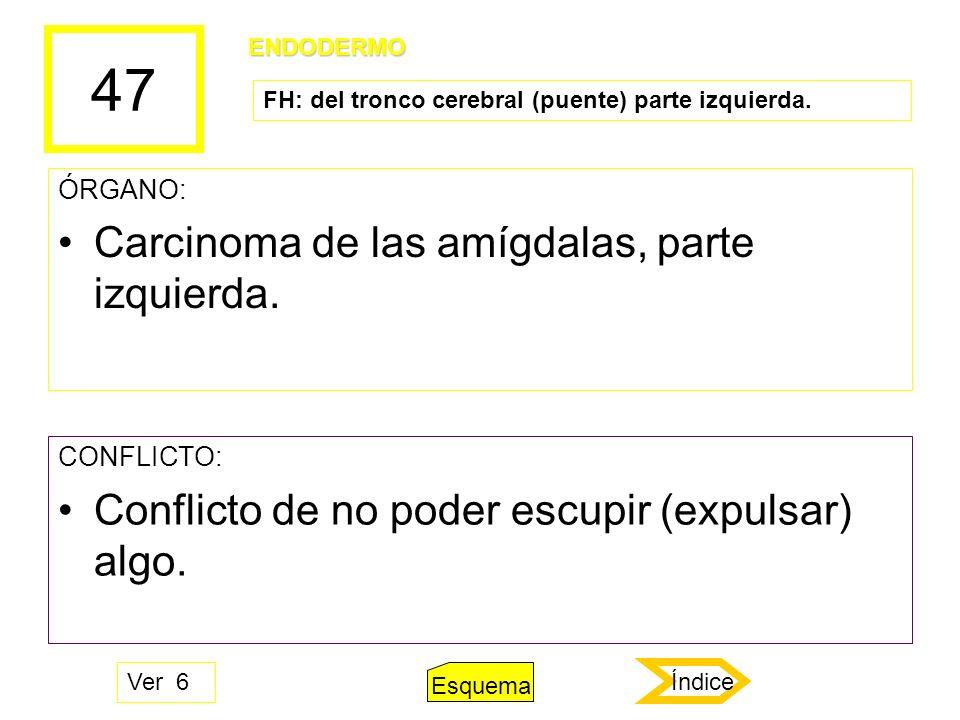 47 ÓRGANO: Carcinoma de las amígdalas, parte izquierda. CONFLICTO: Conflicto de no poder escupir (expulsar) algo. ENDODERMO FH: del tronco cerebral (p