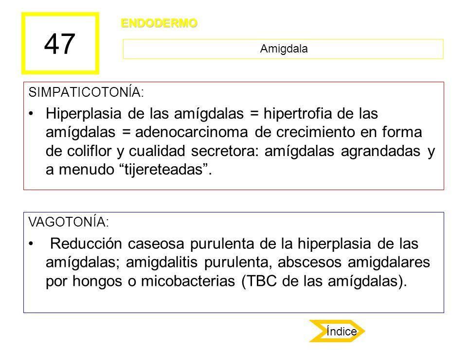 47 SIMPATICOTONÍA: Hiperplasia de las amígdalas = hipertrofia de las amígdalas = adenocarcinoma de crecimiento en forma de coliflor y cualidad secreto