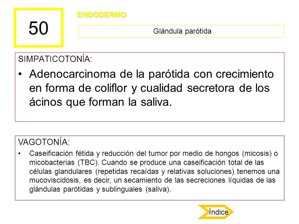50 SIMPATICOTONÍA: Adenocarcinoma de la parótida con crecimiento en forma de coliflor y cualidad secretora de los ácinos que forman la saliva. VAGOTON