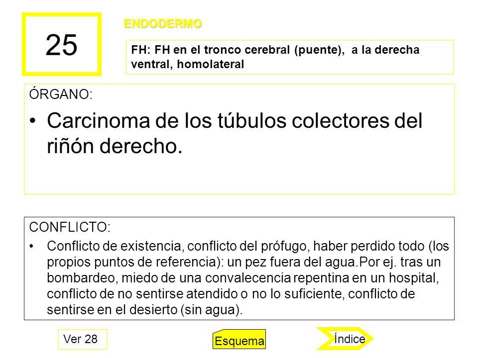 25 ÓRGANO: Carcinoma de los túbulos colectores del riñón derecho. CONFLICTO: Conflicto de existencia, conflicto del prófugo, haber perdido todo (los p