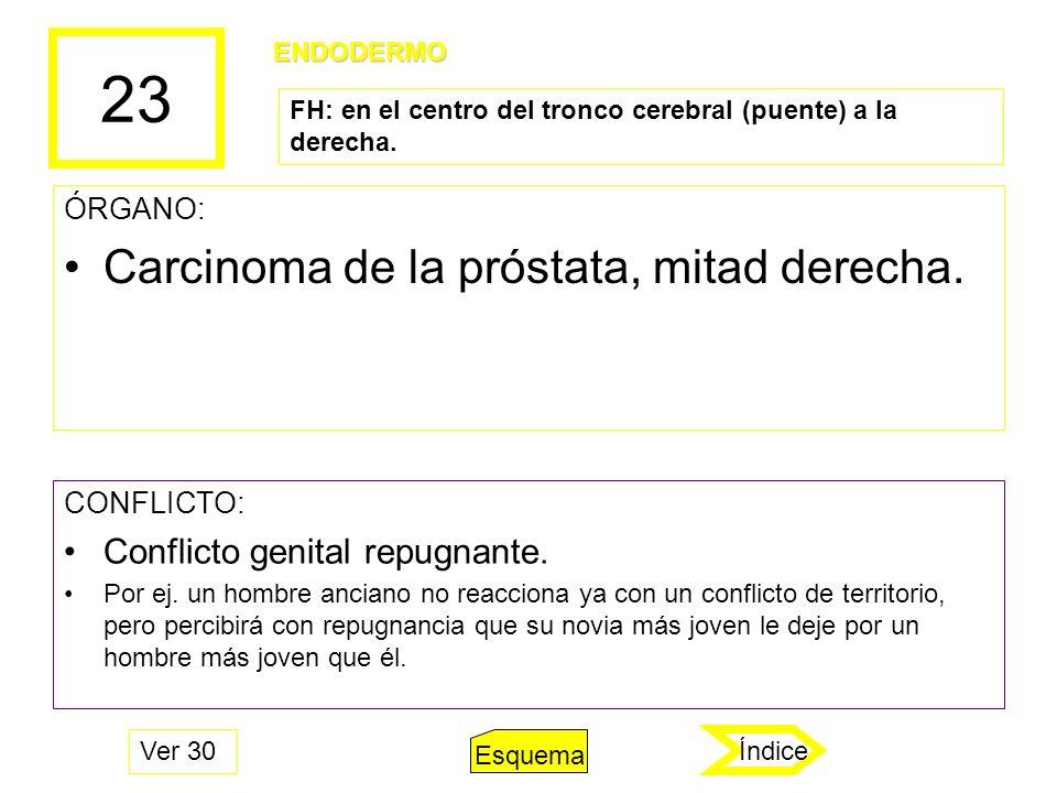 23 ÓRGANO: Carcinoma de la próstata, mitad derecha. CONFLICTO: Conflicto genital repugnante. Por ej. un hombre anciano no reacciona ya con un conflict