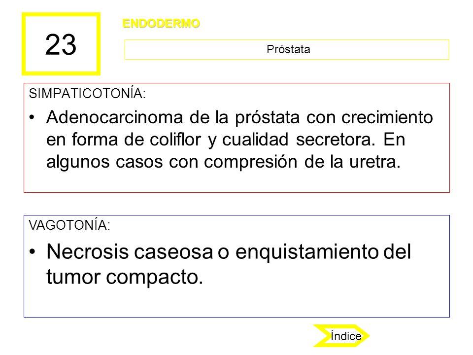 23 SIMPATICOTONÍA: Adenocarcinoma de la próstata con crecimiento en forma de coliflor y cualidad secretora. En algunos casos con compresión de la uret