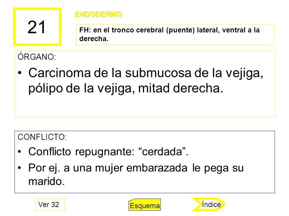 21 ÓRGANO: Carcinoma de la submucosa de la vejiga, pólipo de la vejiga, mitad derecha. CONFLICTO: Conflicto repugnante: cerdada. Por ej. a una mujer e