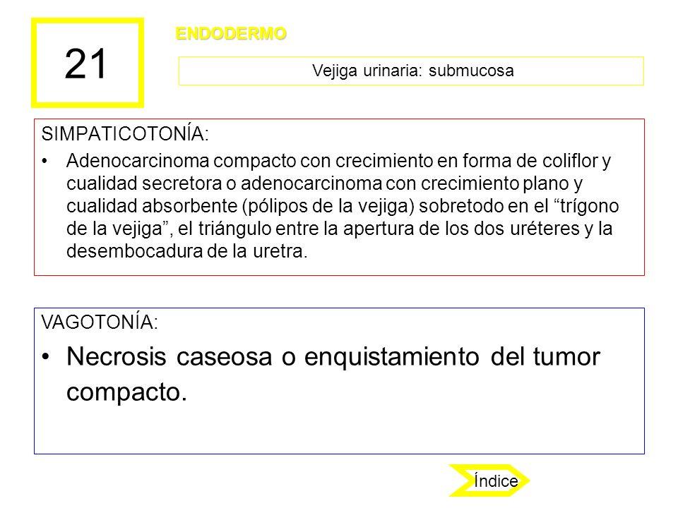 21 SIMPATICOTONÍA: Adenocarcinoma compacto con crecimiento en forma de coliflor y cualidad secretora o adenocarcinoma con crecimiento plano y cualidad