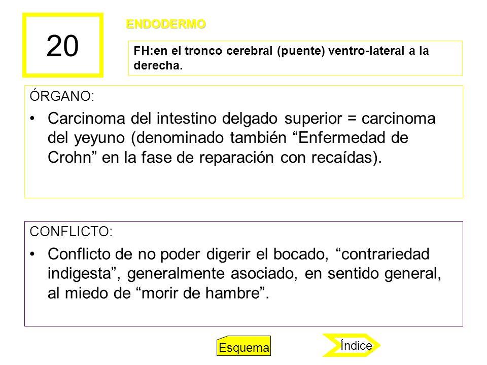 20 ÓRGANO: Carcinoma del intestino delgado superior = carcinoma del yeyuno (denominado también Enfermedad de Crohn en la fase de reparación con recaíd