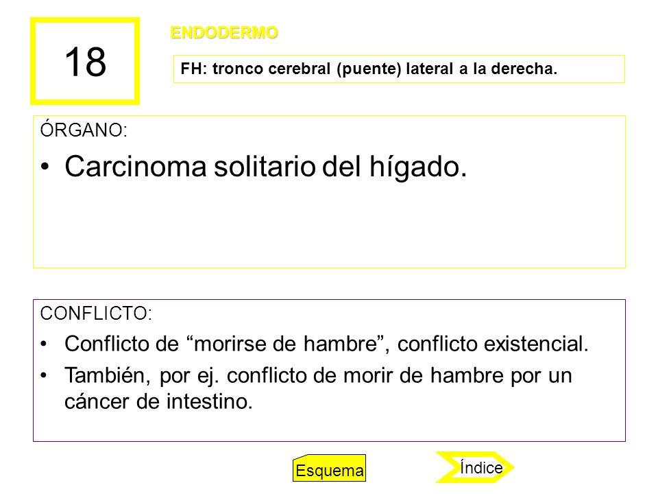 18 ÓRGANO: Carcinoma solitario del hígado. CONFLICTO: Conflicto de morirse de hambre, conflicto existencial. También, por ej. conflicto de morir de ha