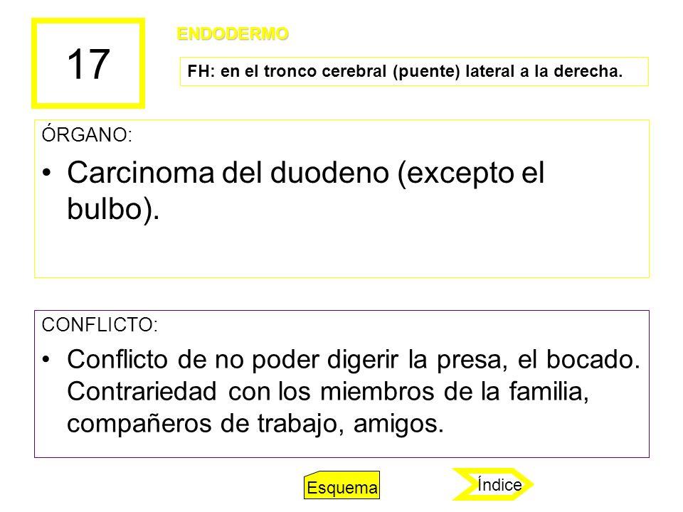 17 ÓRGANO: Carcinoma del duodeno (excepto el bulbo). CONFLICTO: Conflicto de no poder digerir la presa, el bocado. Contrariedad con los miembros de la