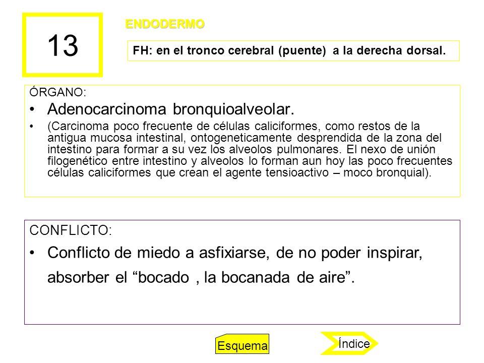 13 ÓRGANO: Adenocarcinoma bronquioalveolar. (Carcinoma poco frecuente de células caliciformes, como restos de la antigua mucosa intestinal, ontogeneti