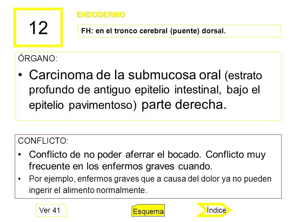 12 ÓRGANO: Carcinoma de la submucosa oral (estrato profundo de antiguo epitelio intestinal, bajo el epitelio pavimentoso) parte derecha. CONFLICTO: Co