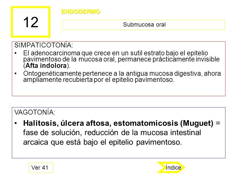 12 SIMPATICOTONÍA: El adenocarcinoma que crece en un sutil estrato bajo el epitelio pavimentoso de la mucosa oral, permanece prácticamente invisible (