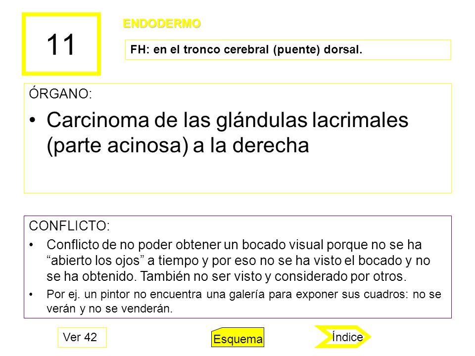 11 ÓRGANO: Carcinoma de las glándulas lacrimales (parte acinosa) a la derecha CONFLICTO: Conflicto de no poder obtener un bocado visual porque no se h