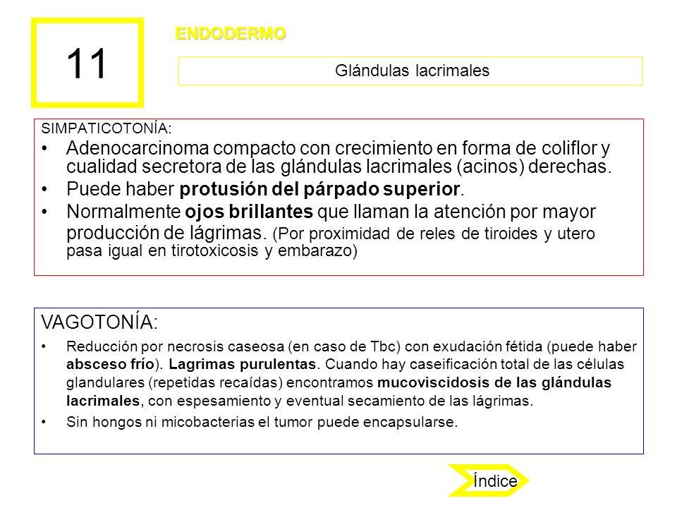 11 SIMPATICOTONÍA: Adenocarcinoma compacto con crecimiento en forma de coliflor y cualidad secretora de las glándulas lacrimales (acinos) derechas. Pu