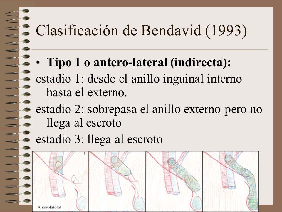 Clasificación de Bendavid (1993) Tipo 1 o antero-lateral (indirecta): estadio 1: desde el anillo inguinal interno hasta el externo.