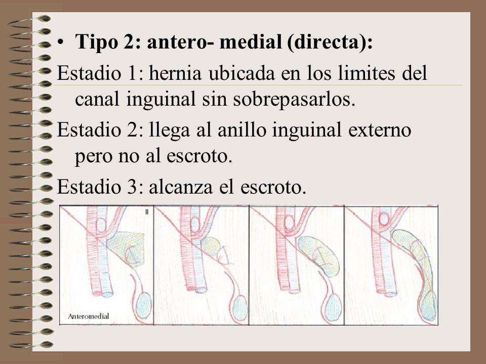 Tipo 2: antero- medial (directa): Estadio 1: hernia ubicada en los limites del canal inguinal sin sobrepasarlos.