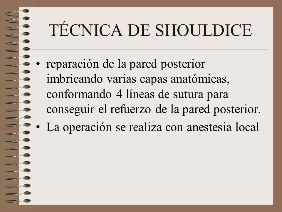 TÉCNICA DE SHOULDICE reparación de la pared posterior imbricando varias capas anatómicas, conformando 4 líneas de sutura para conseguir el refuerzo de la pared posterior.