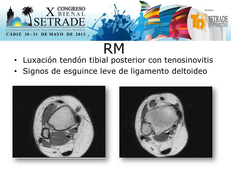 Luxación tendón tibial posterior con tenosinovitis Signos de esguince leve de ligamento deltoideo