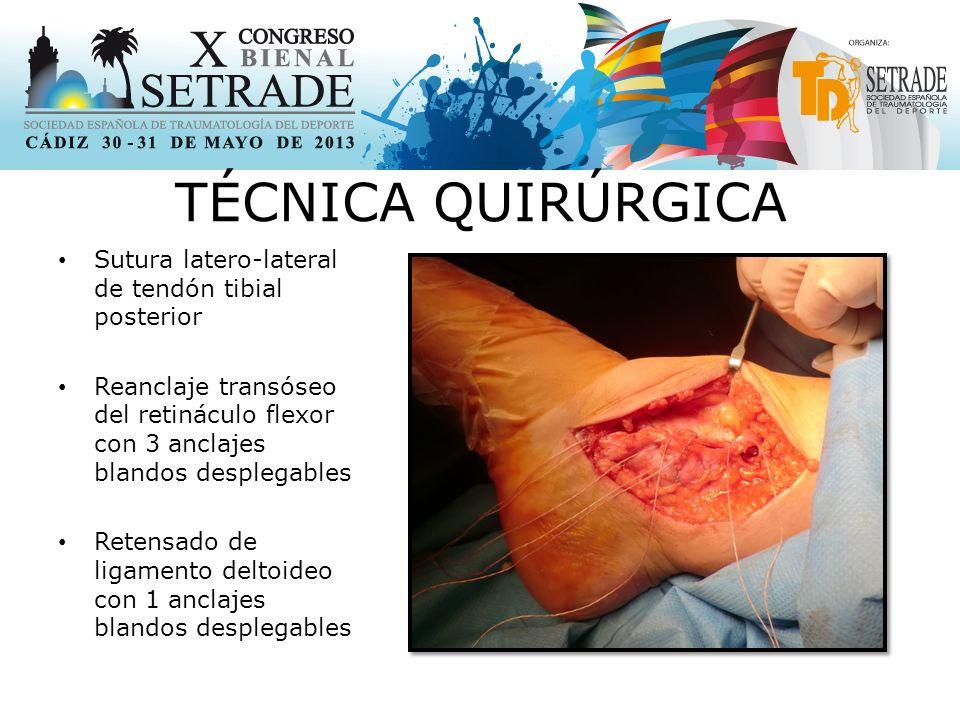 TÉCNICA QUIRÚRGICA Sutura latero-lateral de tendón tibial posterior Reanclaje transóseo del retináculo flexor con 3 anclajes blandos desplegables Retensado de ligamento deltoideo con 1 anclajes blandos desplegables