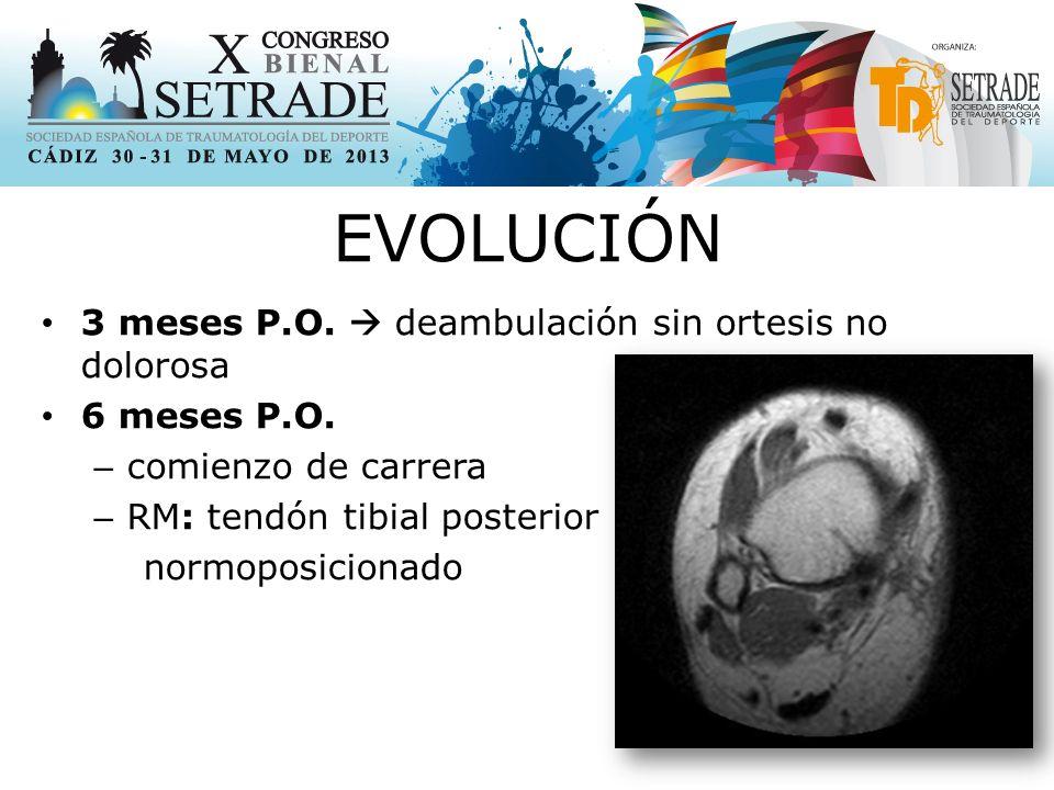 EVOLUCIÓN 3 meses P.O.deambulación sin ortesis no dolorosa 6 meses P.O.