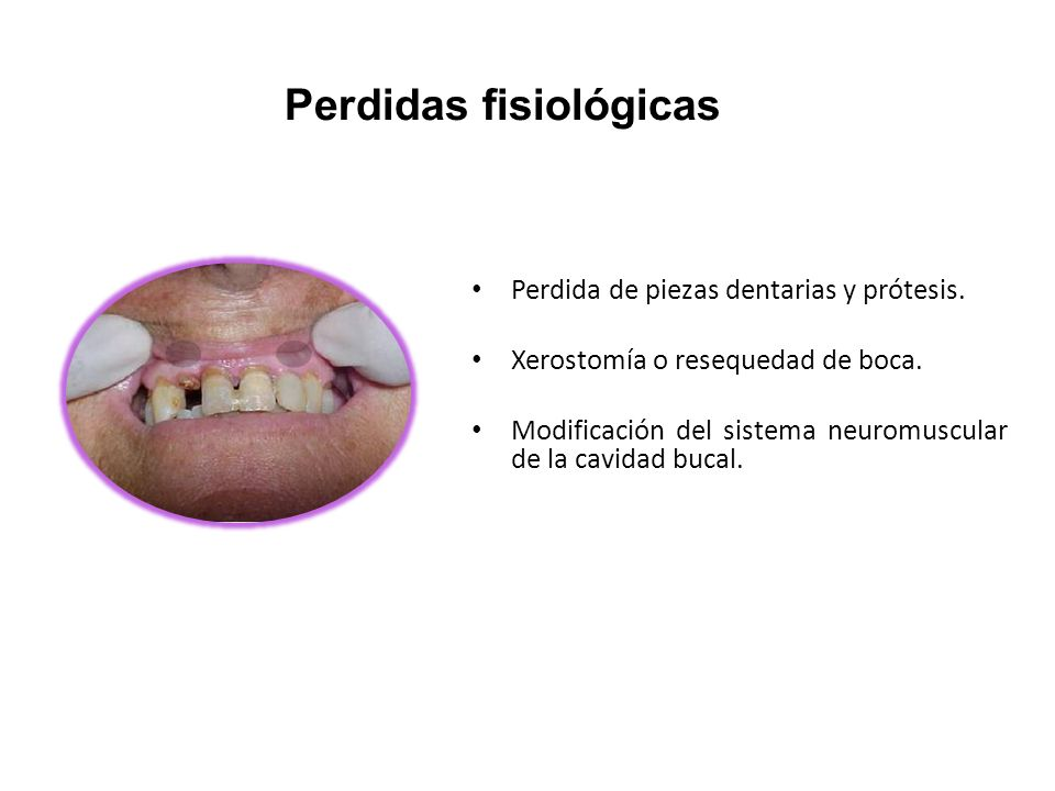 Perdida de piezas dentarias y prótesis. Xerostomía o resequedad de boca. Modificación del sistema neuromuscular de la cavidad bucal. Perdidas fisiológ