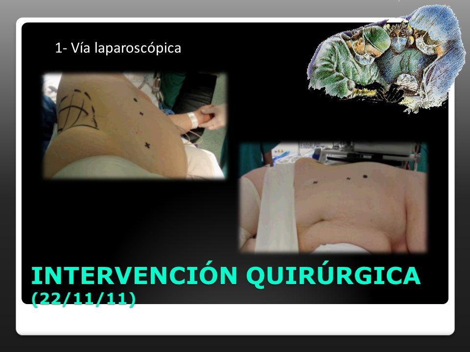 1- Vía laparoscópica