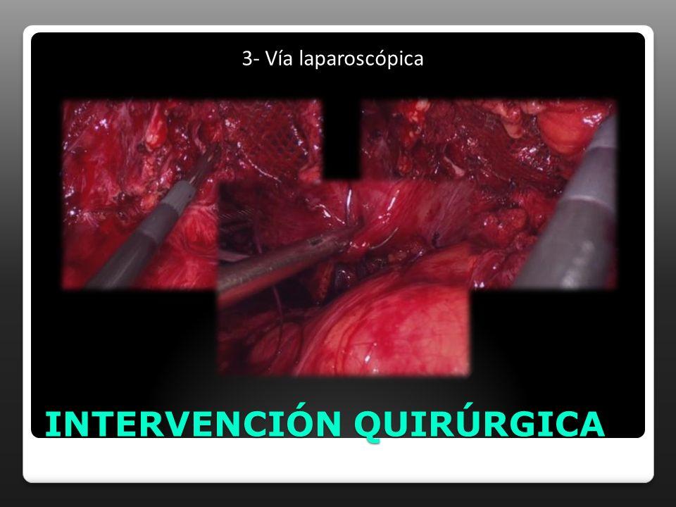 INTERVENCIÓN QUIRÚRGICA 3- Vía laparoscópica
