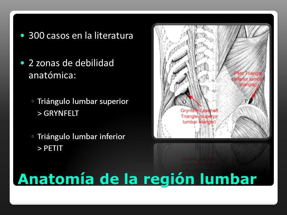 Anatomía de la región lumbar 300 casos en la literatura 2 zonas de debilidad anatómica: Triángulo lumbar superior > GRYNFELT Triángulo lumbar inferior