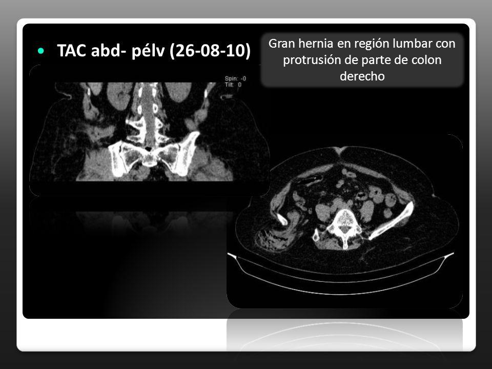 TAC abd- pélv (26-08-10) Gran hernia en región lumbar con protrusión de parte de colon derecho