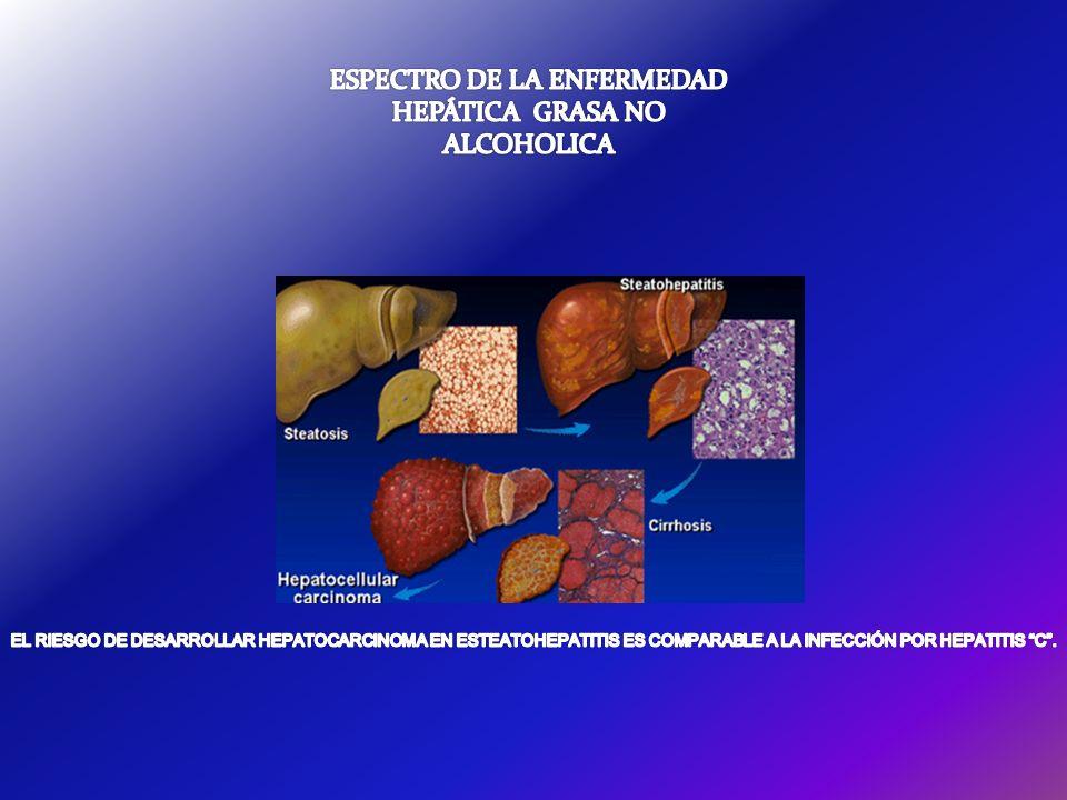 Estadio de Fibrosis (Evaluado separadamente para NAS) Fibrosis0No 1Perisinusoidal o periportal 1ALeve, zona 3, perisinusoidal Fibrosis delicada 1BModerada, zona 3, perisinusoidal fibrosis densa 1CPortal/periportal En esta categor í a se incluyen casos con fibrosis portal y/o periportal sin fibrosis pericellular/perisinusoidal acompa ñ ante 2Perisinusoidal y portal/periportal 3Puentes fibrosos 4Cirrosis El total del Score de Actividad para NAFLD (NAS) representa la suma de los scores para esteatosis, inflamaci ó n lobular, y balonamiento, y el rango es de 0-8.
