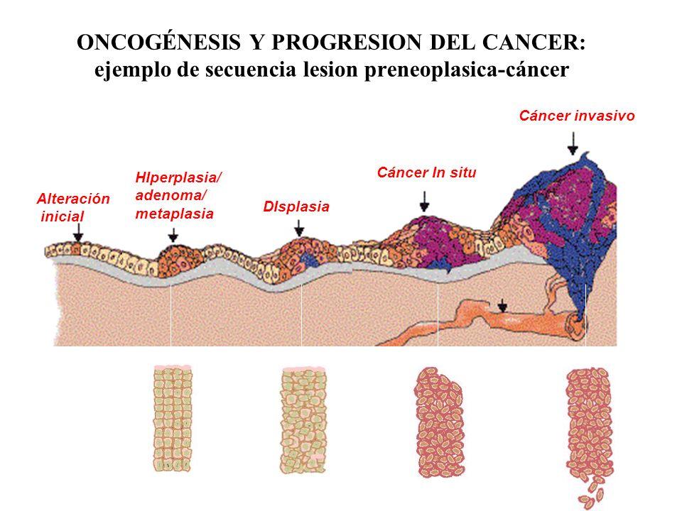 ONCOGÉNESIS Y PROGRESION DEL CANCER: ejemplo de secuencia lesion preneoplasica-cáncer HIperplasia/ adenoma/ metaplasia DIsplasia Cáncer In situ Cáncer
