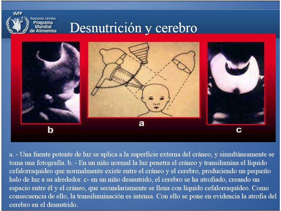 Efecto de la desnutrición en la PEA de cada país (2004) Fuente Doc.
