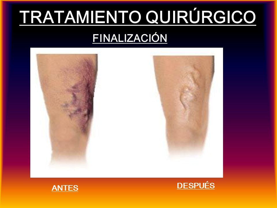 TRATAMIENTO QUIRÚRGICO FINALIZACIÓN ANTES DESPUÉS
