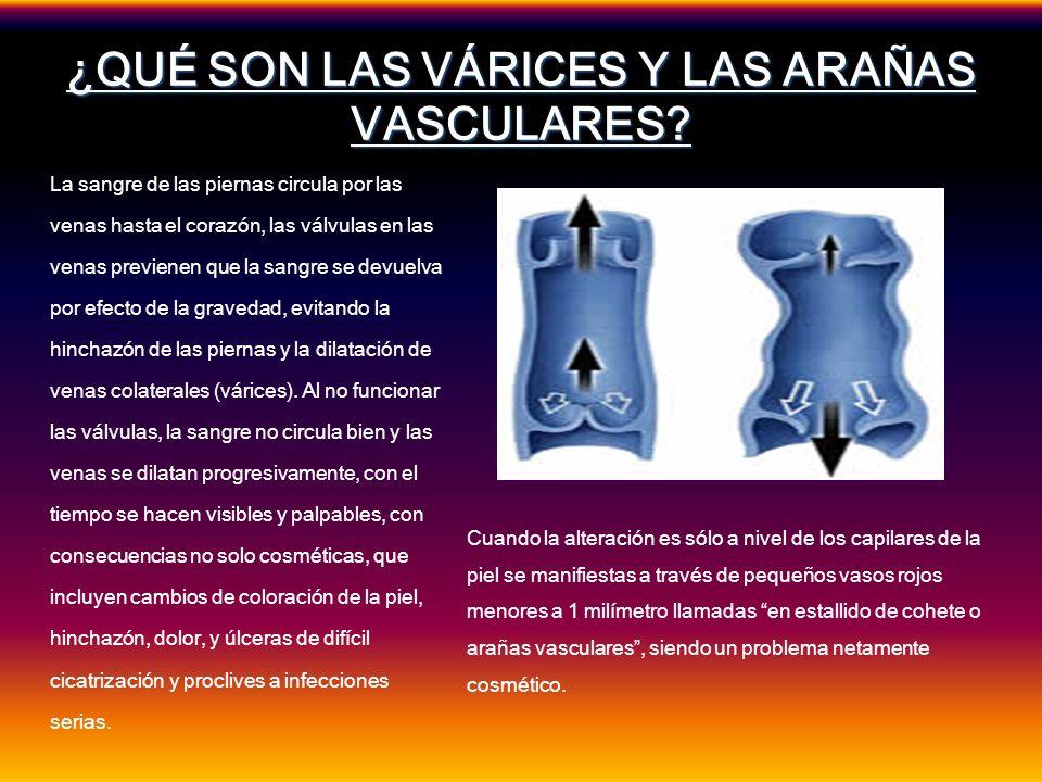 ¿QUÉ SON LAS VÁRICES Y LAS ARAÑAS VASCULARES? La sangre de las piernas circula por las venas hasta el corazón, las válvulas en las venas previenen que
