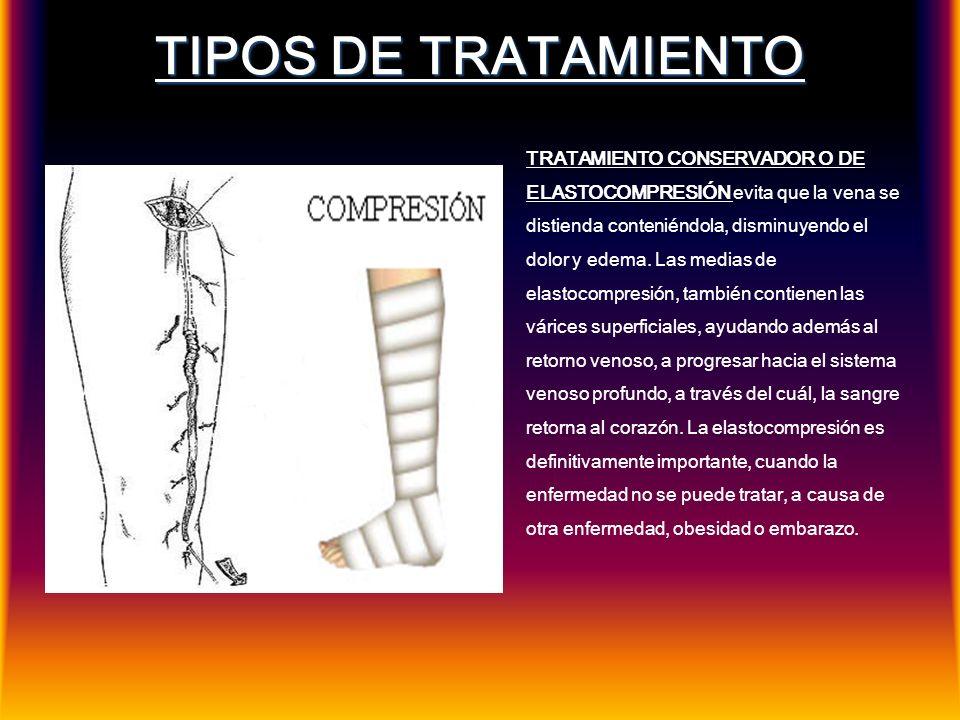 TIPOS DE TRATAMIENTO TRATAMIENTO CONSERVADOR O DE ELASTOCOMPRESIÓN evita que la vena se distienda conteniéndola, disminuyendo el dolor y edema. Las me