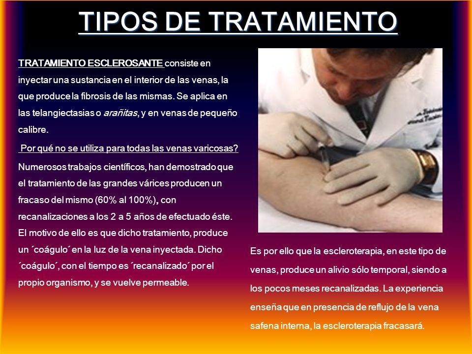 TIPOS DE TRATAMIENTO MICROCIRUGÍA VENOSA permite por incisiones mínimas, de 2-3mm., remover las venas enfermas, no requiriendo puntos y reduciendo, notoriamente el trauma de los tejidos.