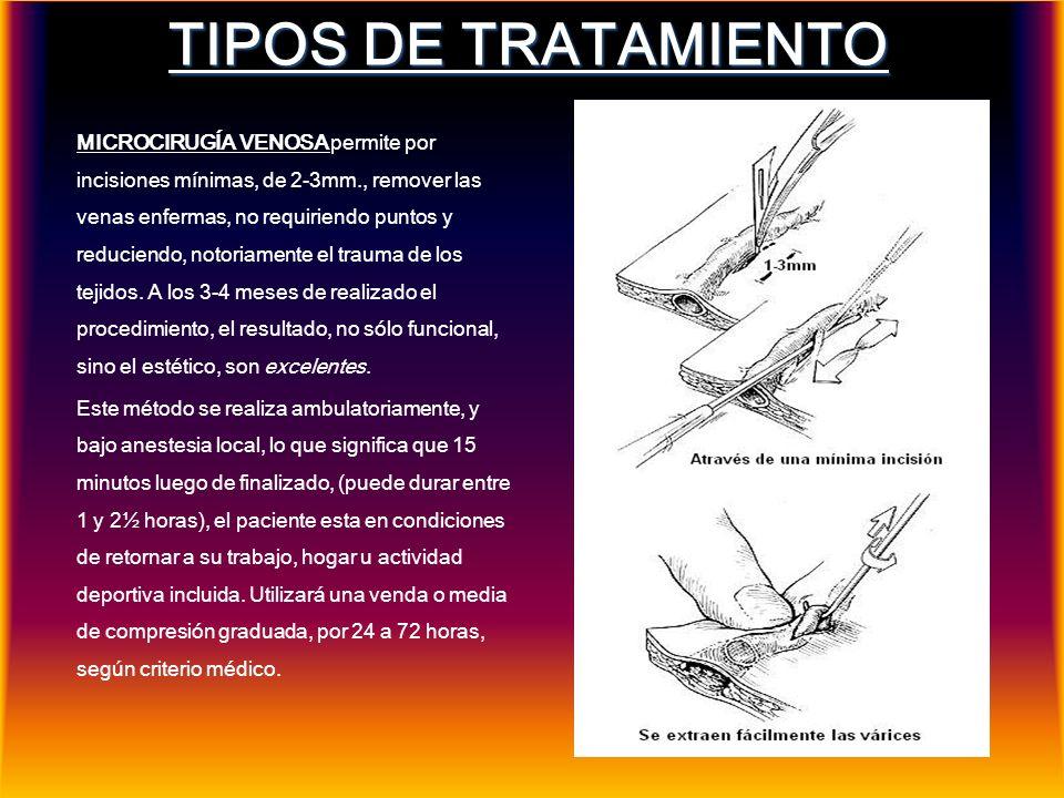 TIPOS DE TRATAMIENTO MICROCIRUGÍA VENOSA permite por incisiones mínimas, de 2-3mm., remover las venas enfermas, no requiriendo puntos y reduciendo, no