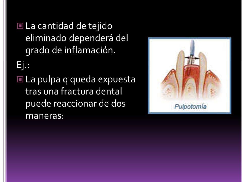 La cantidad de tejido eliminado dependerá del grado de inflamación. Ej.: La pulpa q queda expuesta tras una fractura dental puede reaccionar de dos ma