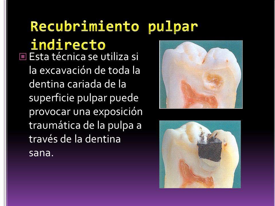 Colocación de hidróxido de calcio en contacto directo con la pulpa.