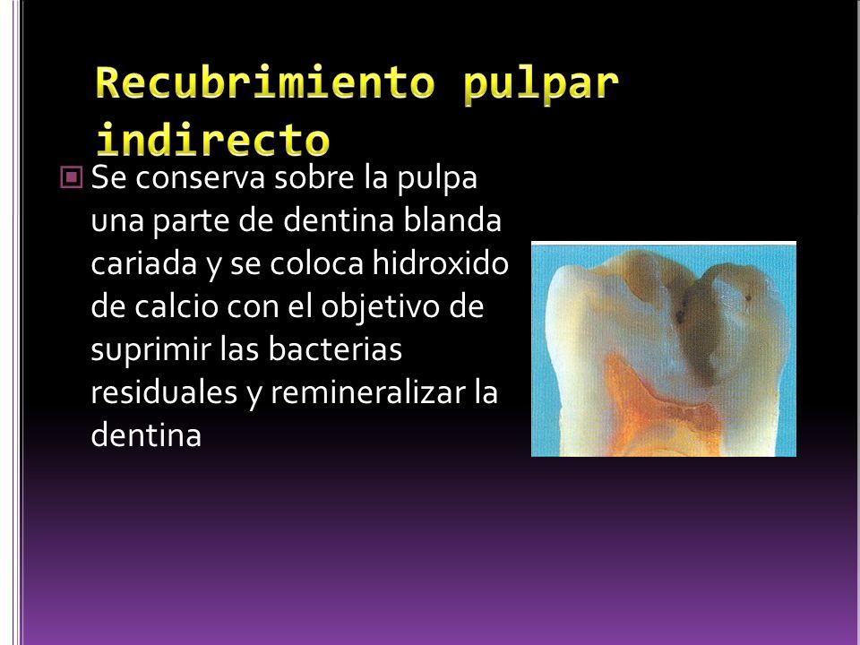 Se conserva sobre la pulpa una parte de dentina blanda cariada y se coloca hidroxido de calcio con el objetivo de suprimir las bacterias residuales y