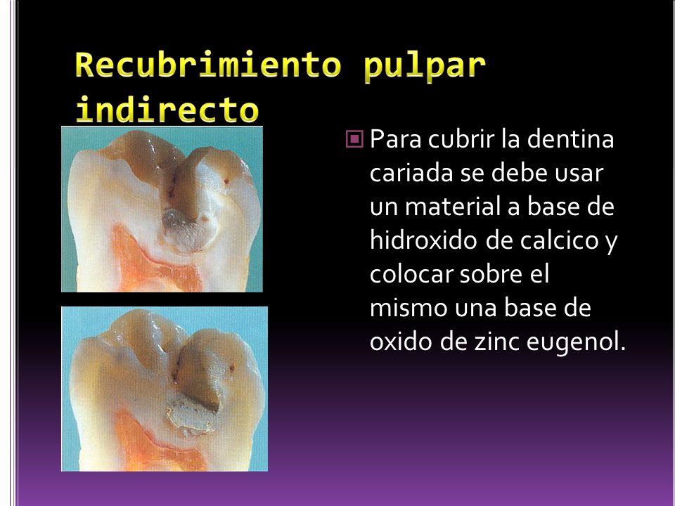 Para cubrir la dentina cariada se debe usar un material a base de hidroxido de calcico y colocar sobre el mismo una base de oxido de zinc eugenol.