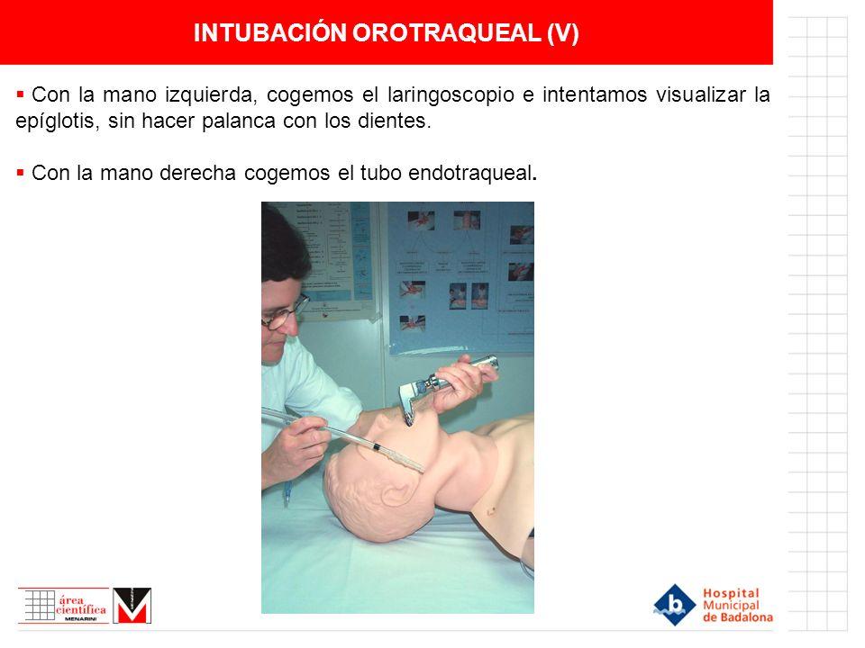 INTUBACIÓN OROTRAQUEAL (V) Con la mano izquierda, cogemos el laringoscopio e intentamos visualizar la epíglotis, sin hacer palanca con los dientes. Co