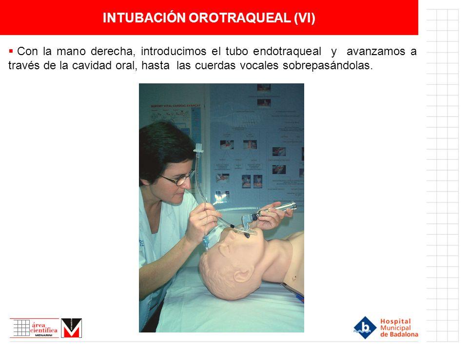 INTUBACIÓN OROTRAQUEAL (VI) Con la mano derecha, introducimos el tubo endotraqueal y avanzamos a través de la cavidad oral, hasta las cuerdas vocales sobrepasándolas.