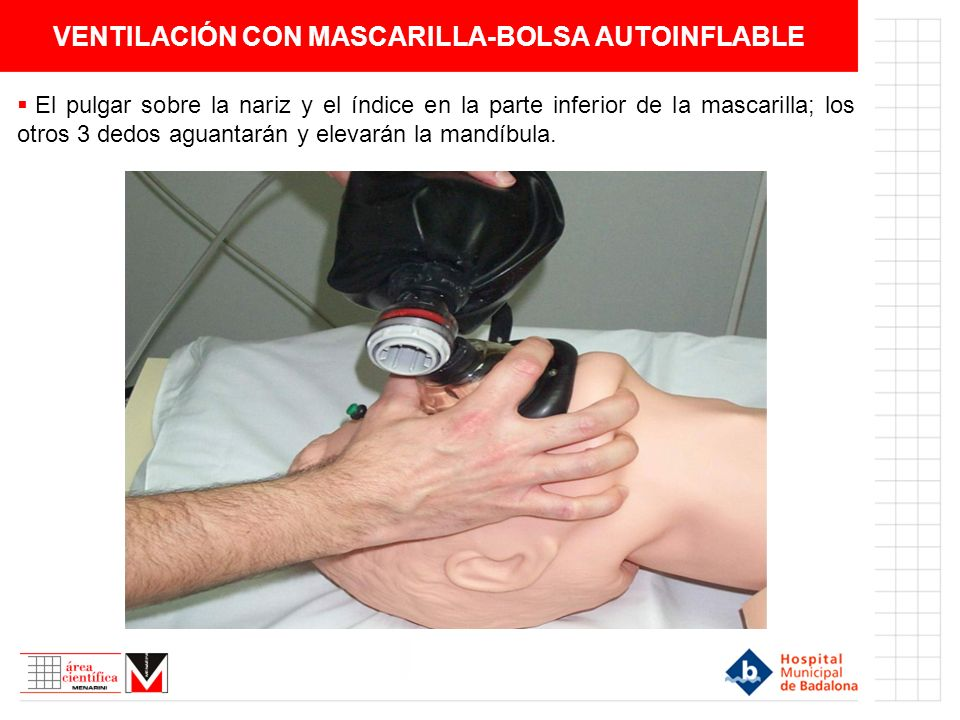 VENTILACIÓN CON MASCARILLA-BOLSA AUTOINFLABLE El pulgar sobre la nariz y el índice en la parte inferior de la mascarilla; los otros 3 dedos aguantarán