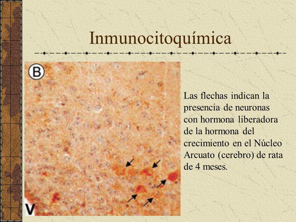 Inmunocitoquímica Las flechas indican la presencia de neuronas con hormona liberadora de la hormona del crecimiento en el Núcleo Arcuato (cerebro) de